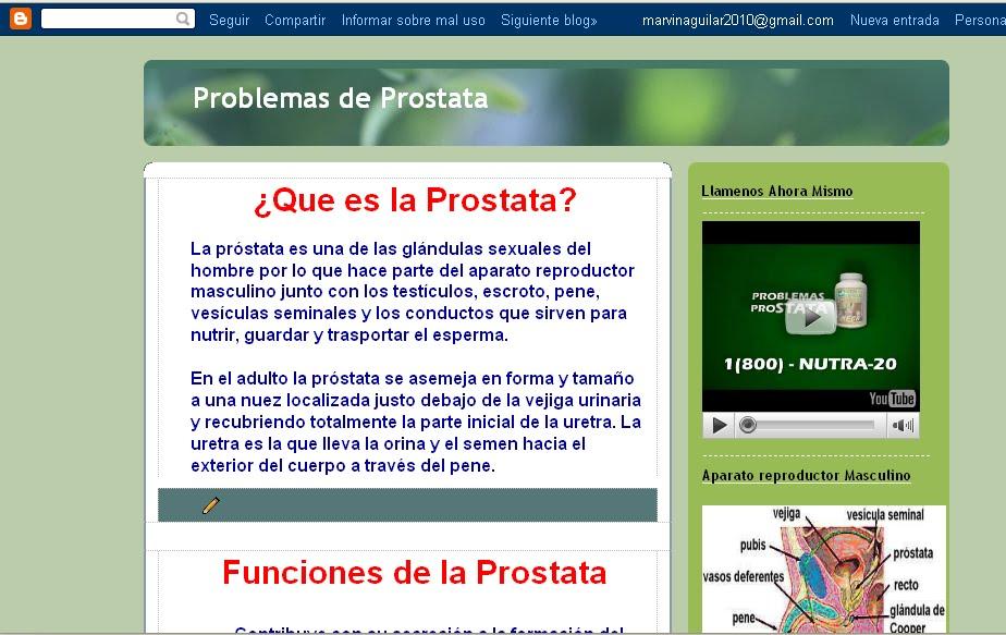 http://4.bp.blogspot.com/_3IXU7P7O5pM/S8yLbGzNqNI/AAAAAAAAAPQ/AH52IVa03-4/s1600/prostatacocaone.bmp