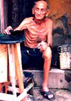 Anciano cubano con visibles síntomas de desnutrición