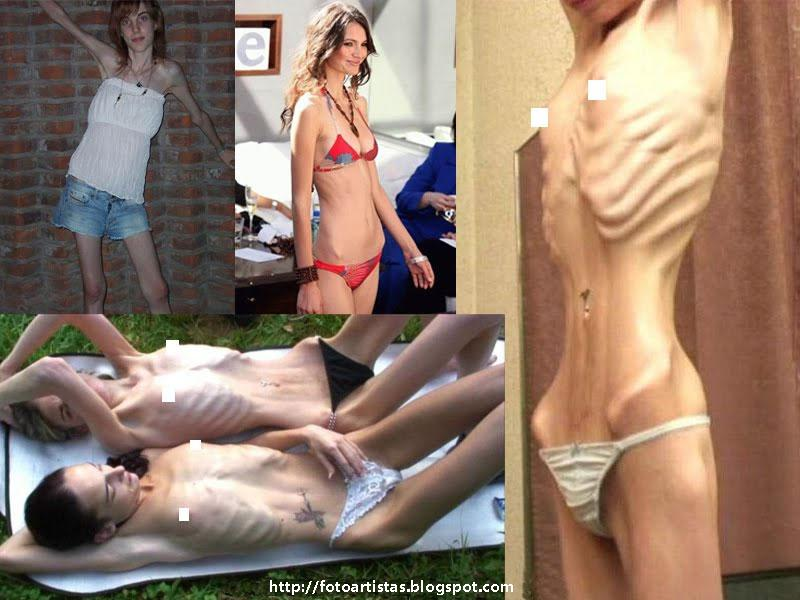 2Порно ролики анорексичек