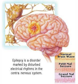 Clonic seizures absence seizures myoclonic seizures atonic seizures
