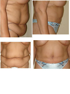 fotos abdominoplastia