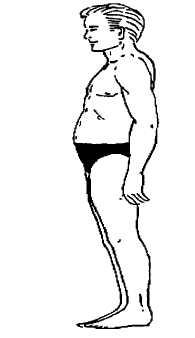 tilted pelvis problem