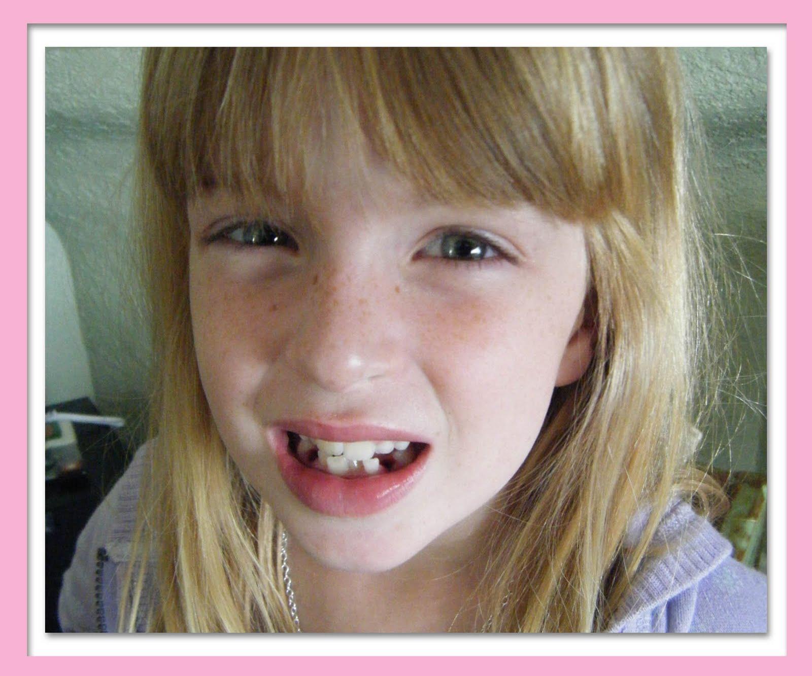 http://4.bp.blogspot.com/_45EgrFdK-ps/S_LSKekCrwI/AAAAAAAAALY/pAn0dryVXLo/s1600/Mags+after+teeth2.jpg