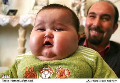 Unbeliveable 20 kg baby born in Tehran,Iran