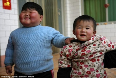 Unbeliveable Chinese Girl Weighs 41.3 Kgs