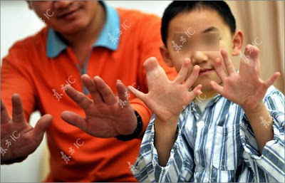 Unbelievable - Chinese Boy With 34 Fingers