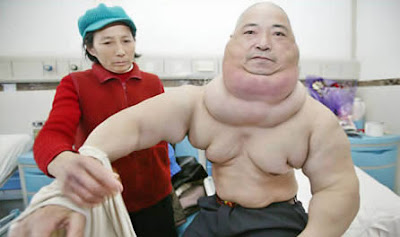 World's Most Biggest Tumor
