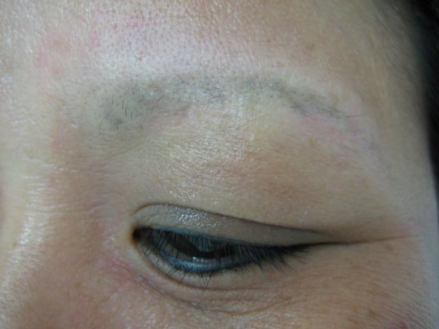 permanent makeup before after. After photo, 1 month after
