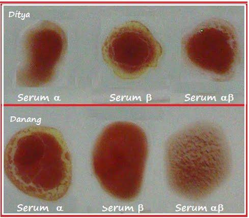http://4.bp.blogspot.com/_4IwHTsRufBg/S7bAu4JwkuI/AAAAAAAACoc/KwSsGuUx_4w/s1600/uji+golongan+darah+depok.bmp
