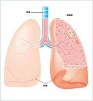肺葉癌細胞