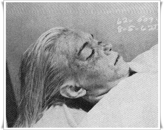 marilyn monroe morgue photo