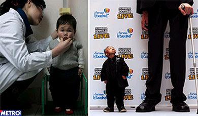 enanos mundo guiness El hombre más pequeño del mundo
