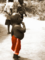 Starving African Child Belly The Borgen Project: Wh...