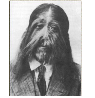 3 - Hypertrichosis - Weird and Extreme