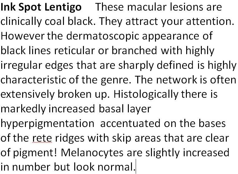 Zakboek Dermatologie - Alfabetische indeling - L