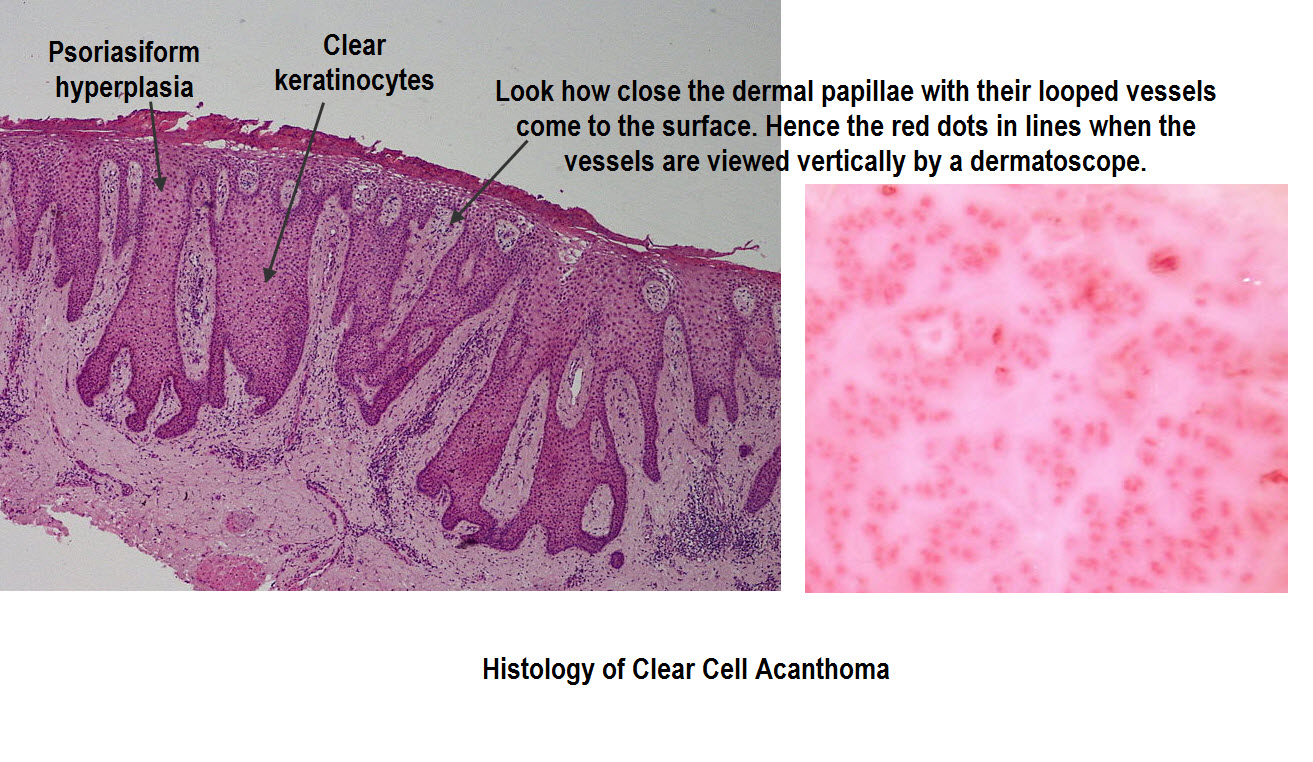Clear cell acanthoma - Wikipedia