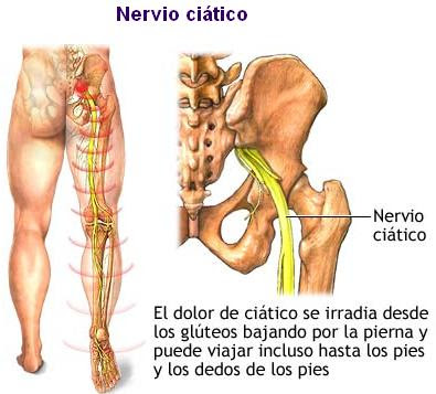 Las vitaminas en las inyecciones de los dolores en la espalda