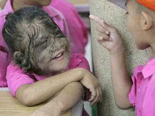 Werewolf+syndrome+pictures