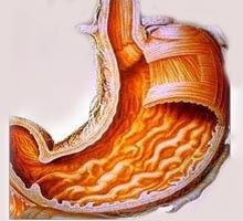 gastritis antral cronica