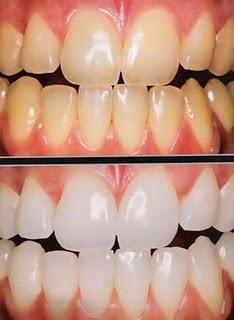Odontoblogger Clareamento Dental