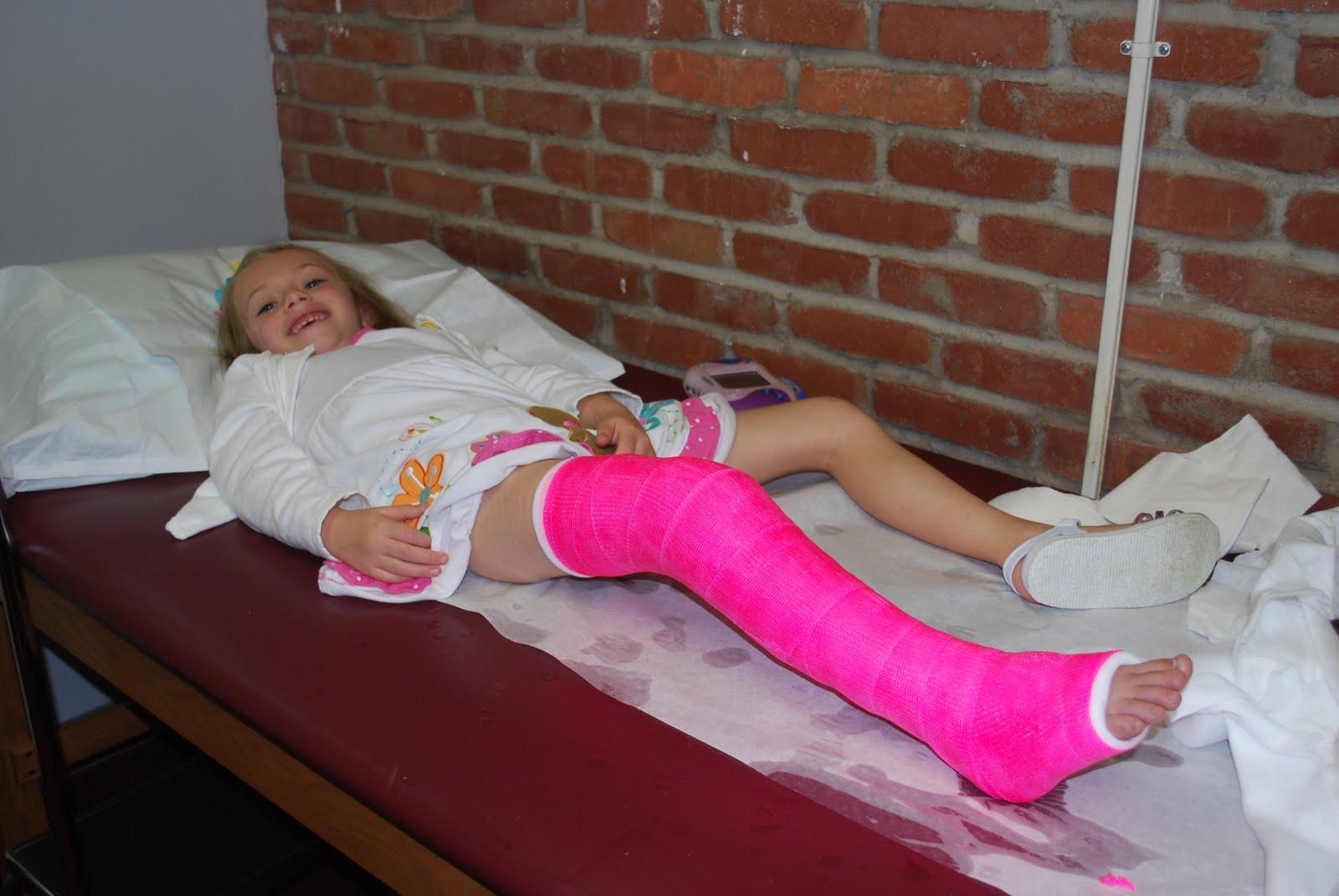 Her Broken Leg Cast