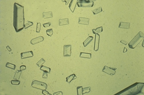 amorphous urate crystals in urine. These cystine crystals are