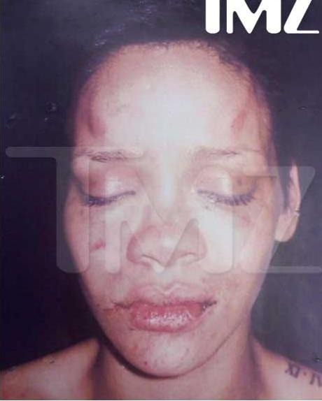 rihanna face beat up. and Rihanna Beat-up Photo