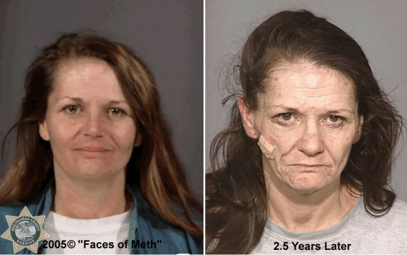 Crystal Meth Before and After