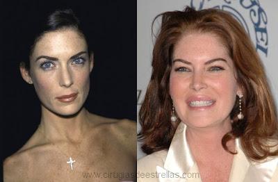 Lara Flyn Boyle antes y despues