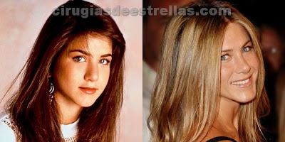 Jennifer Aniston antes y después