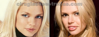 sophie monk antes y despues