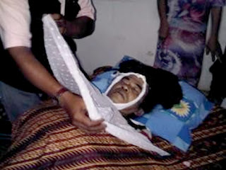 Jasad Mbah Surip yang meninggal karena serangan jantung