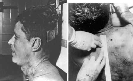 JFK-Autopsy-Photos.jpg