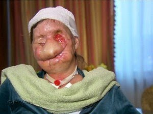 Charla Nash pictures after attack | chimp attack victim pictures