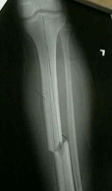 Transverse fracture perpindicuar to the long axis of the long bone