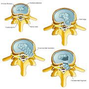 Lumbar Disc Surgery