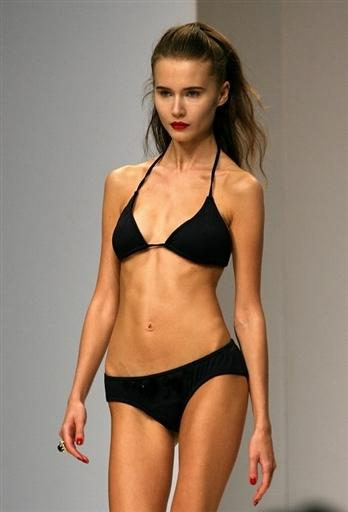 anorexic models. Exposed: Anorexic Models