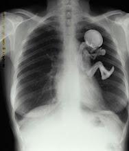 Radiografía de una Madre