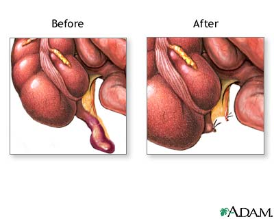 Appendix exploded