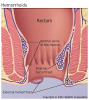 Cure Hemorrhoids