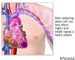 heart-attack-symptoms-angina