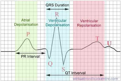 Ekg lead placement smoke over fire also dog ecg lead placement