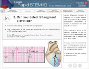 Learn: Rapid STEMI ID. Pros:The interactive software is top notch.