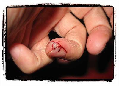 Jag skar mig i fingret när jag försökte göra coleslaw.