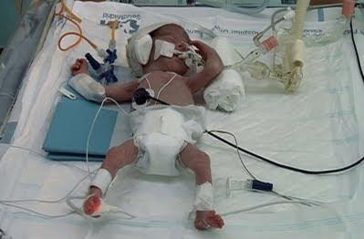 prematuros-gemelos-criandomultiples.blogspot
