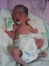the day u were born- 1.8kg