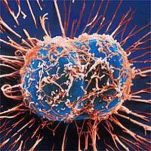 http://4.bp.blogspot.com/_8pO-wD1Ks00/SmQbZ7FataI/AAAAAAAAAGw/mFsbCUFQo_U/s320/cancer-cells.jpg