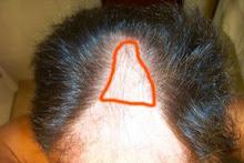 Pre hair transplant repair pics
