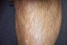 lower leg hair
