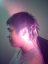 Akupunktur Sakit Kepala